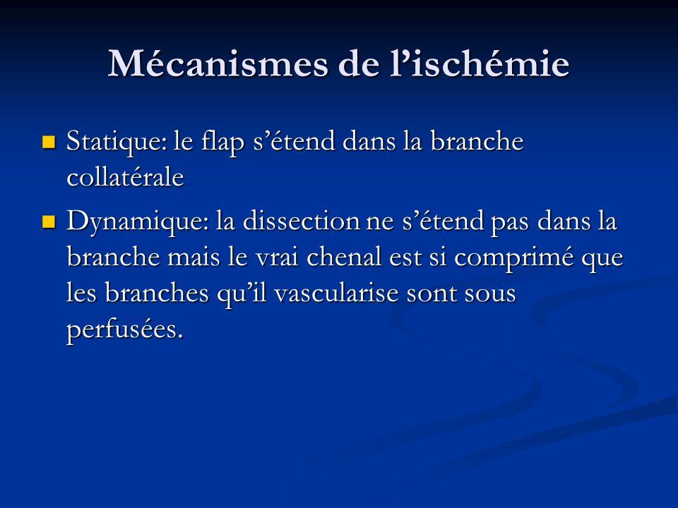 Mécanismes de l'ischémie