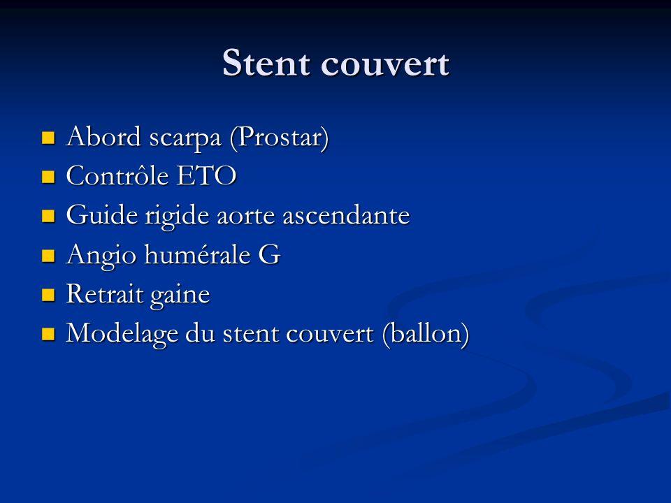 Stent couvert Abord scarpa (Prostar) Contrôle ETO