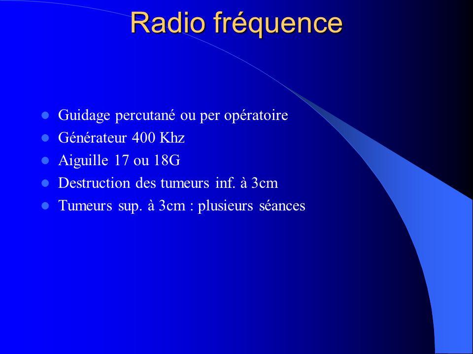 Radio fréquence Guidage percutané ou per opératoire Générateur 400 Khz