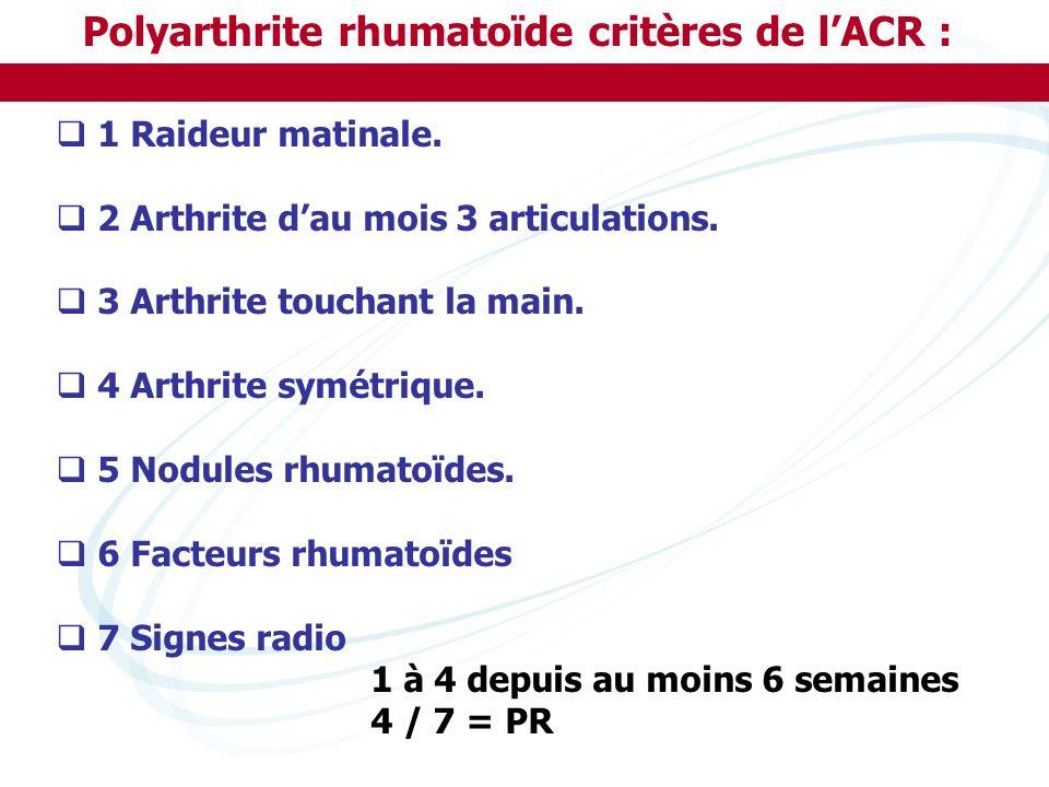 Polyarthrite rhumatoïde critères de l'ACR :