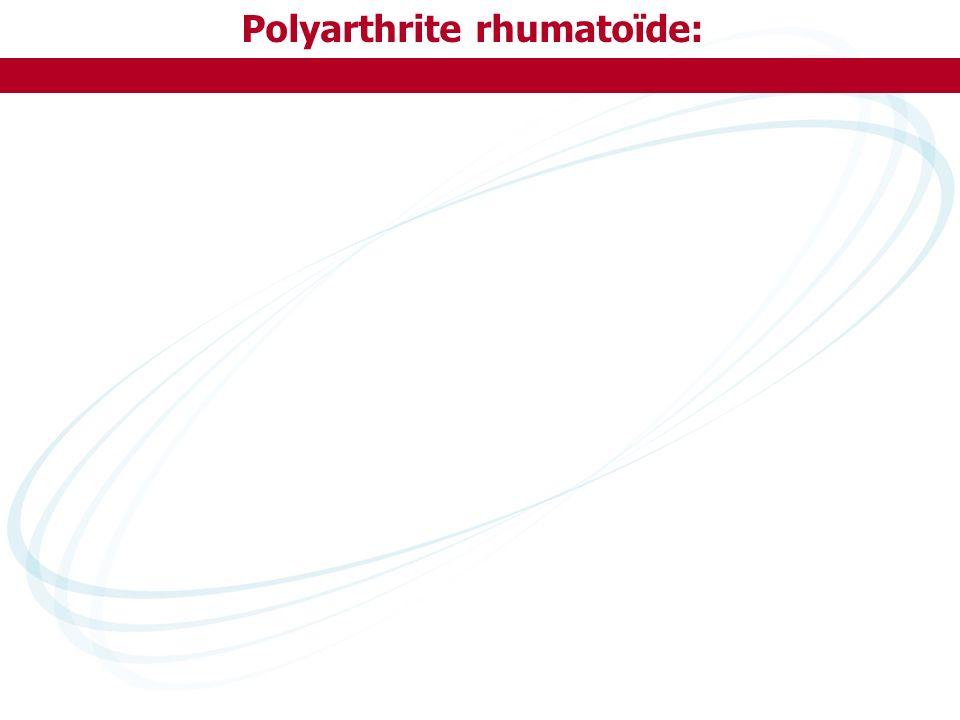 Polyarthrite rhumatoïde: