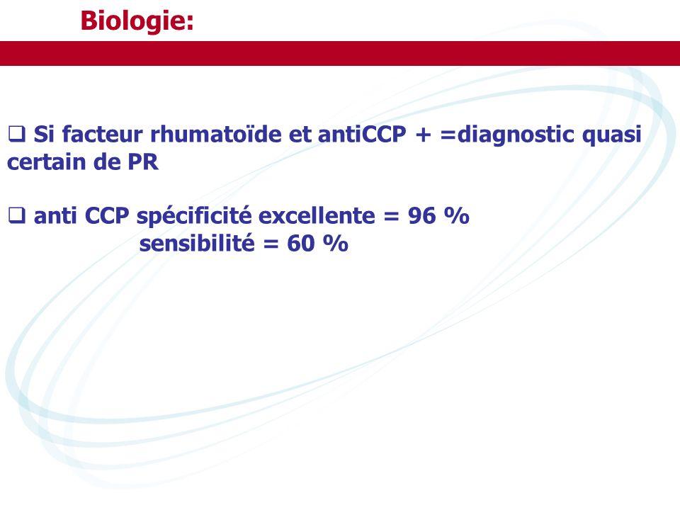 Biologie: Si facteur rhumatoïde et antiCCP + =diagnostic quasi certain de PR. anti CCP spécificité excellente = 96 %