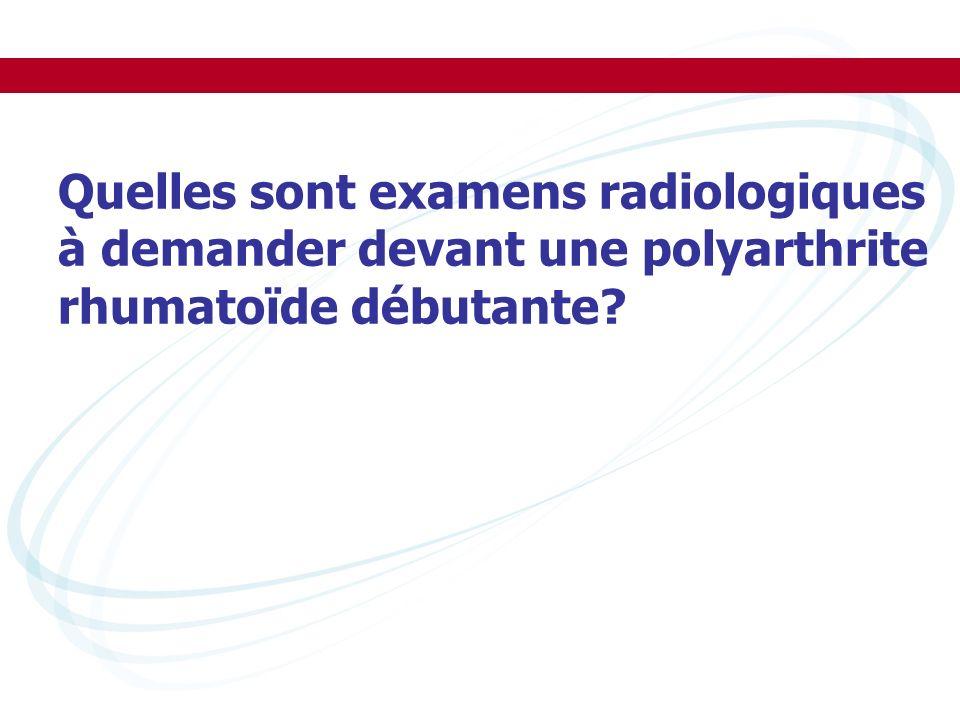 Quelles sont examens radiologiques à demander devant une polyarthrite rhumatoïde débutante