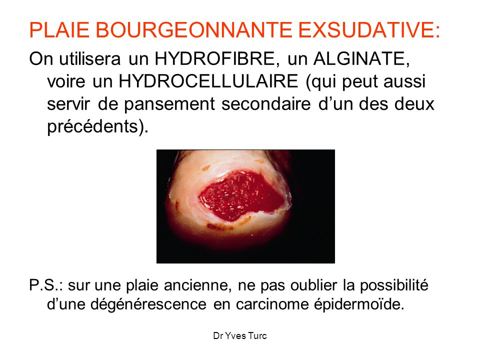 PLAIE BOURGEONNANTE EXSUDATIVE: