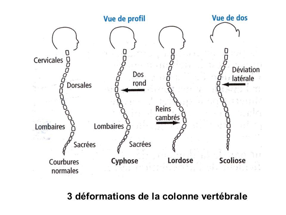 3 déformations de la colonne vertébrale