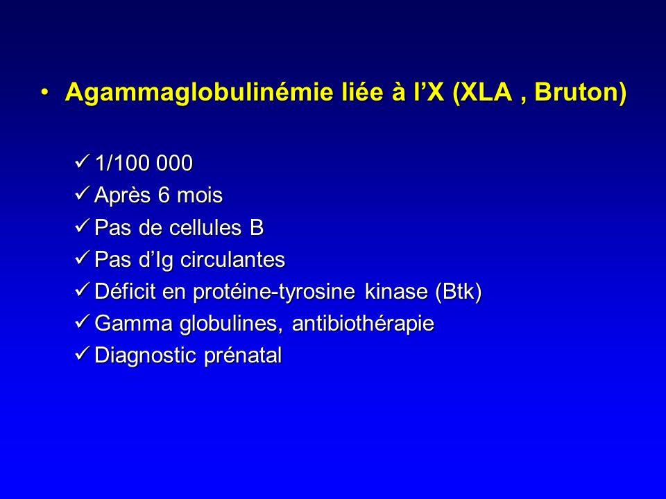 Agammaglobulinémie liée à l'X (XLA , Bruton)