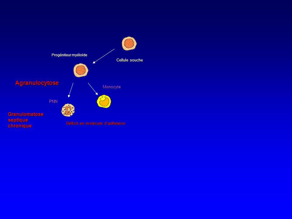 Agranulocytose Granulomatose septique chronique Cellule souche