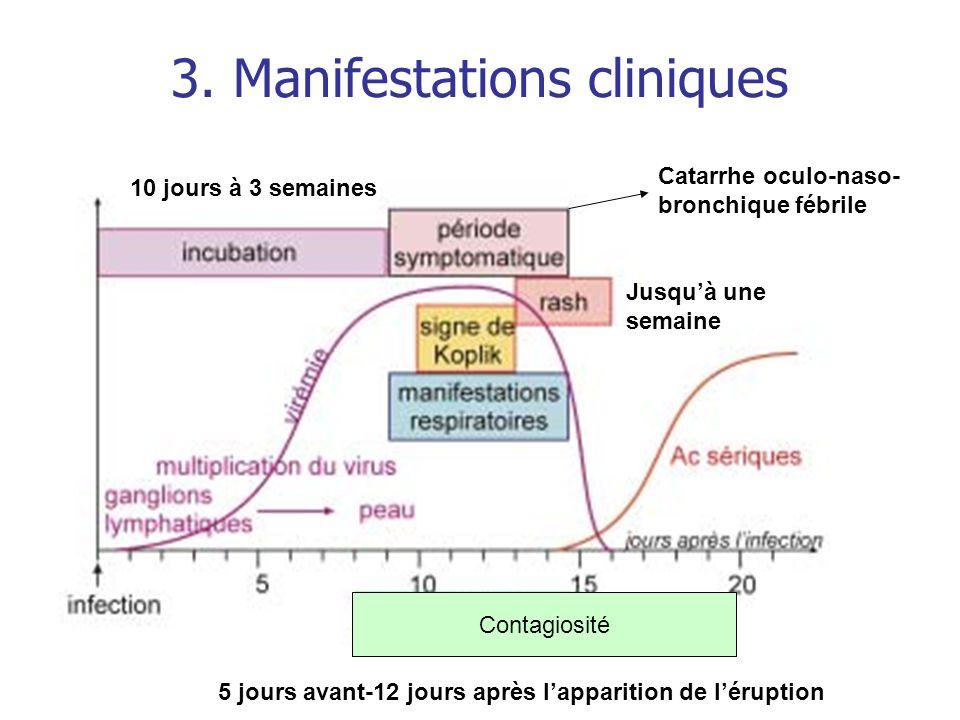 3. Manifestations cliniques