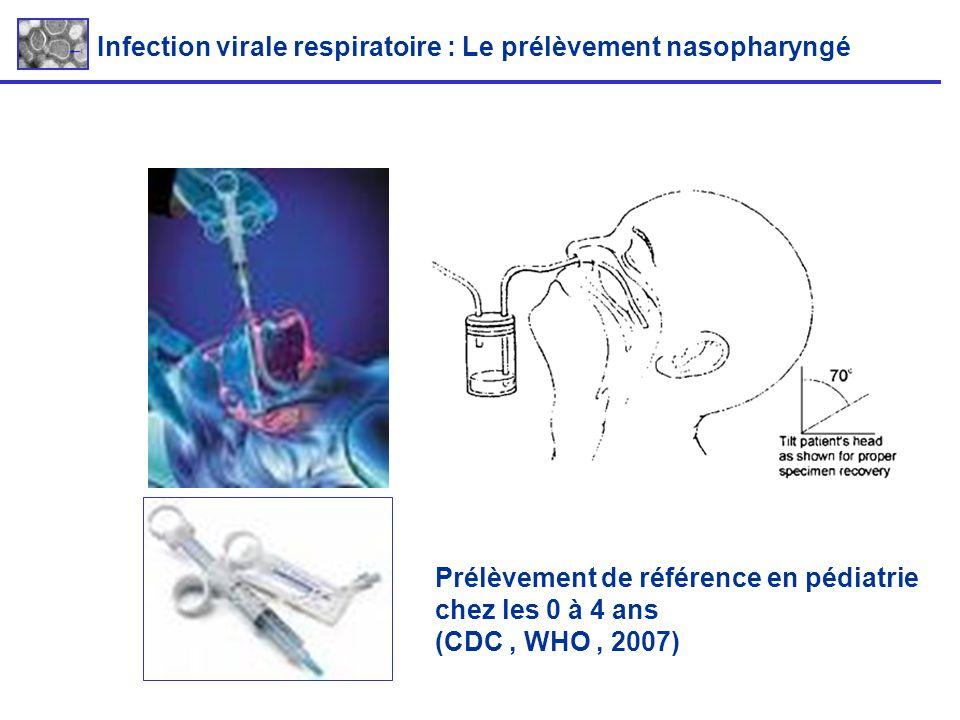 Infection virale respiratoire : Le prélèvement nasopharyngé