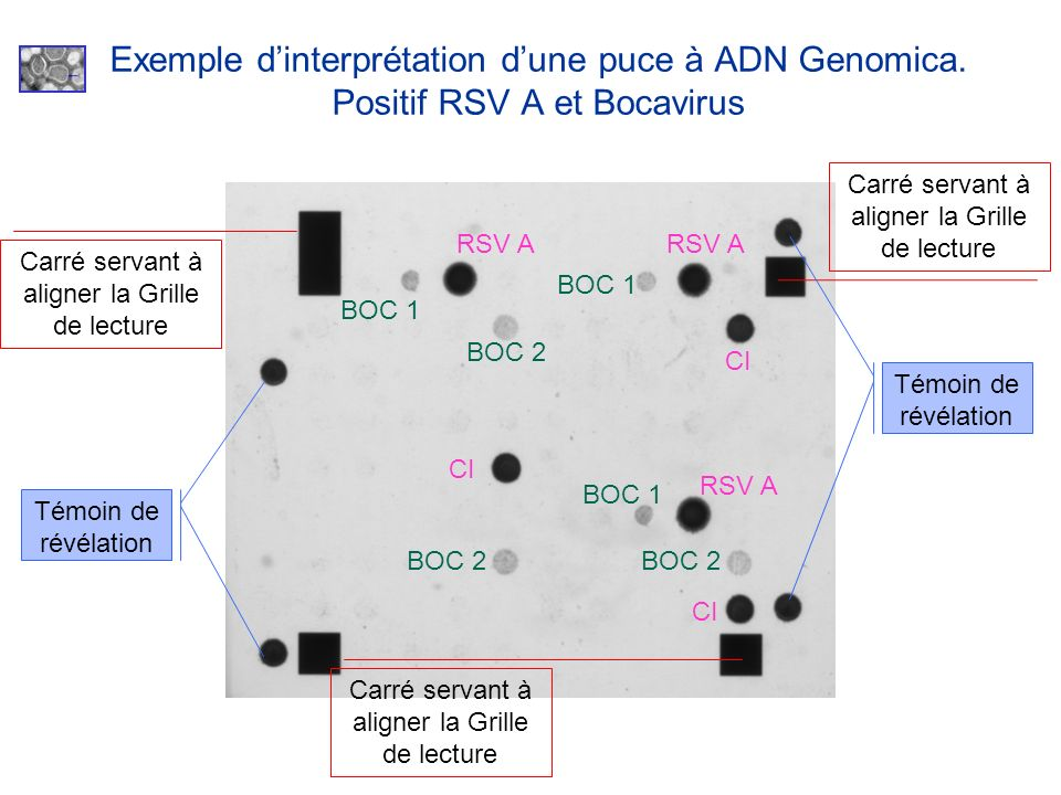 Exemple d'interprétation d'une puce à ADN Genomica