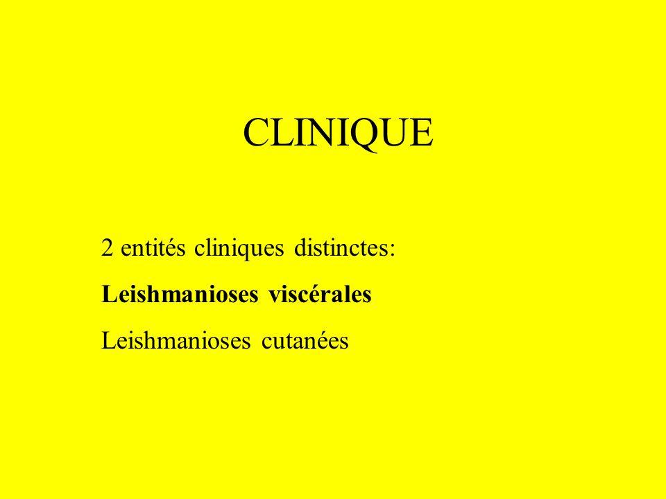 CLINIQUE 2 entités cliniques distinctes: Leishmanioses viscérales