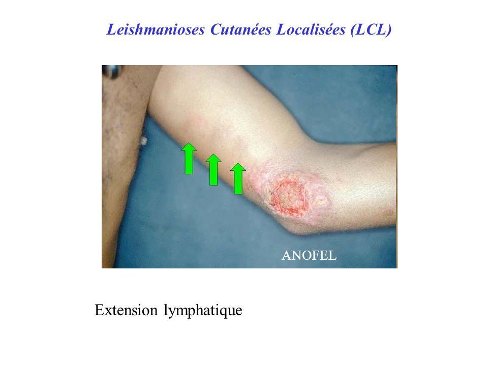 Leishmanioses Cutanées Localisées (LCL)