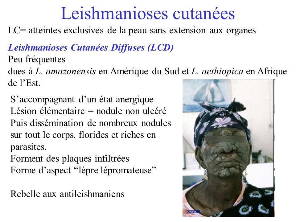 Leishmanioses cutanées