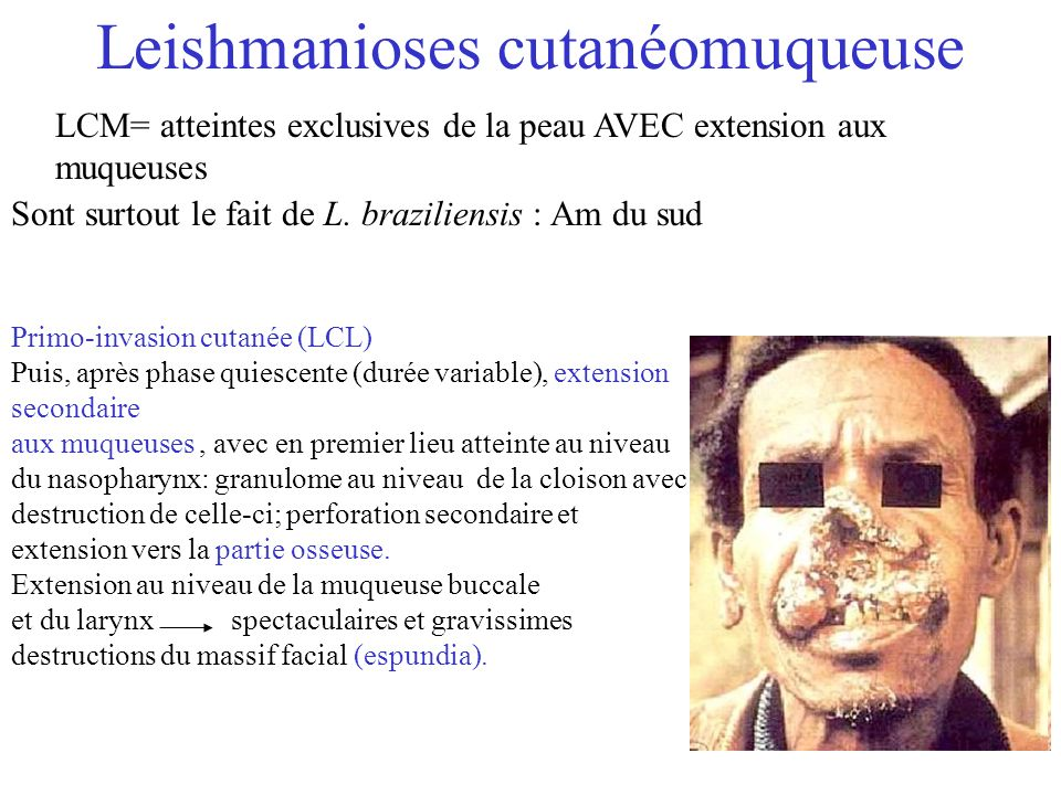 Leishmanioses cutanéomuqueuse