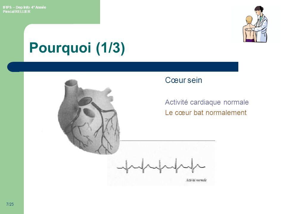 Pourquoi (1/3) Cœur sein Activité cardiaque normale