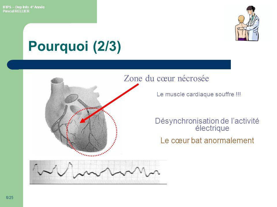 Pourquoi (2/3) Zone du cœur nécrosée