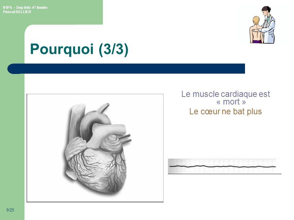 Le muscle cardiaque est « mort »