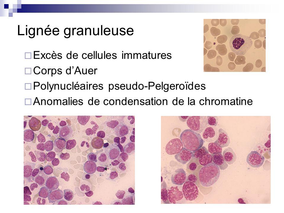 Lignée granuleuse Excès de cellules immatures Corps d'Auer
