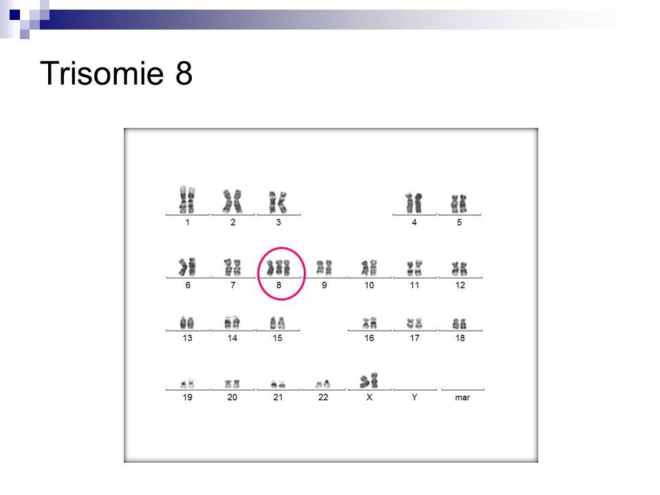Trisomie 8 Trisomie 8