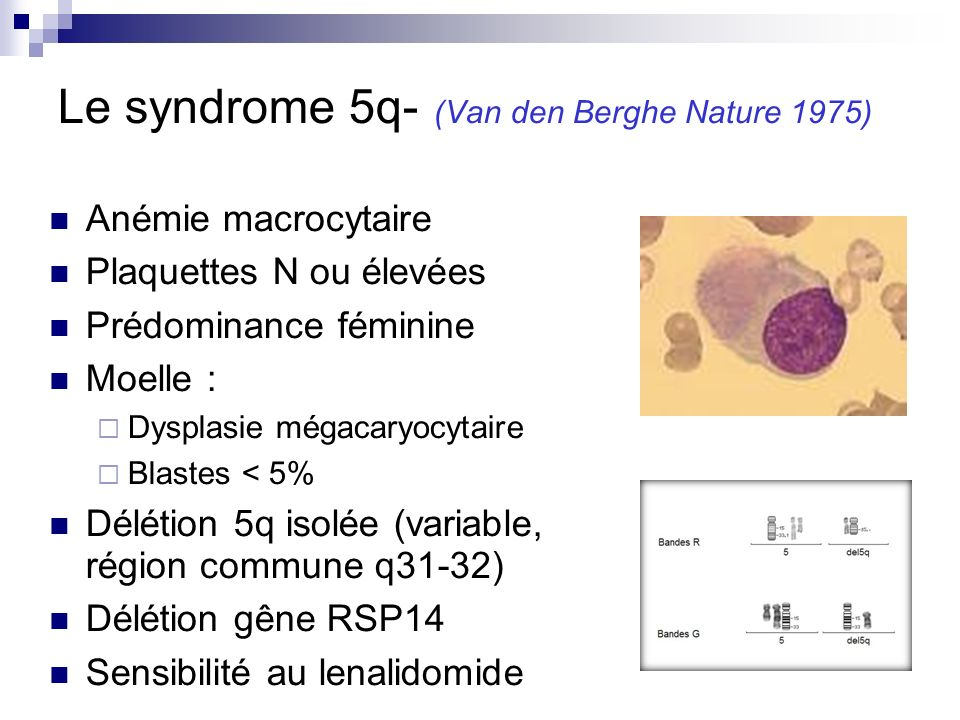 Le syndrome 5q- (Van den Berghe Nature 1975)