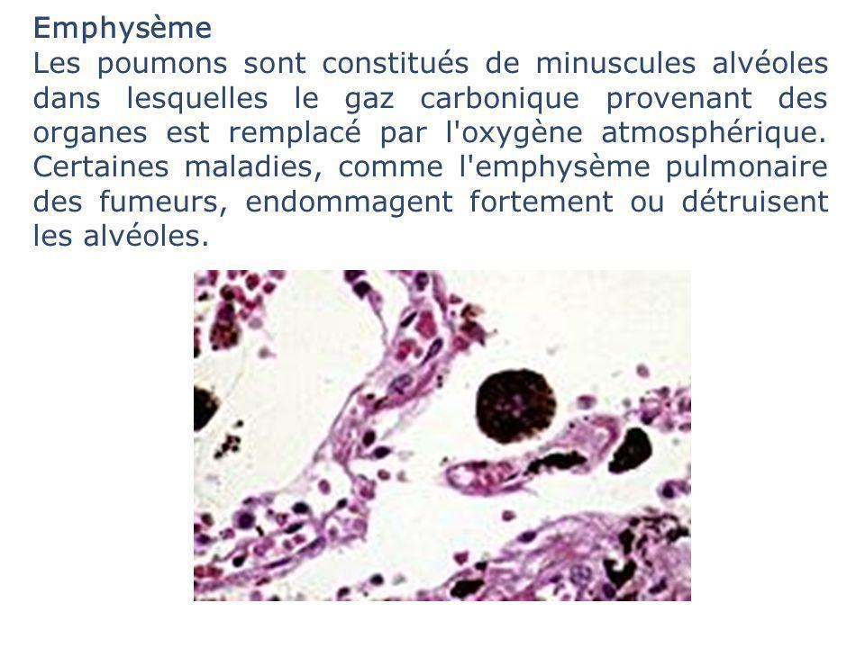 Emphysème