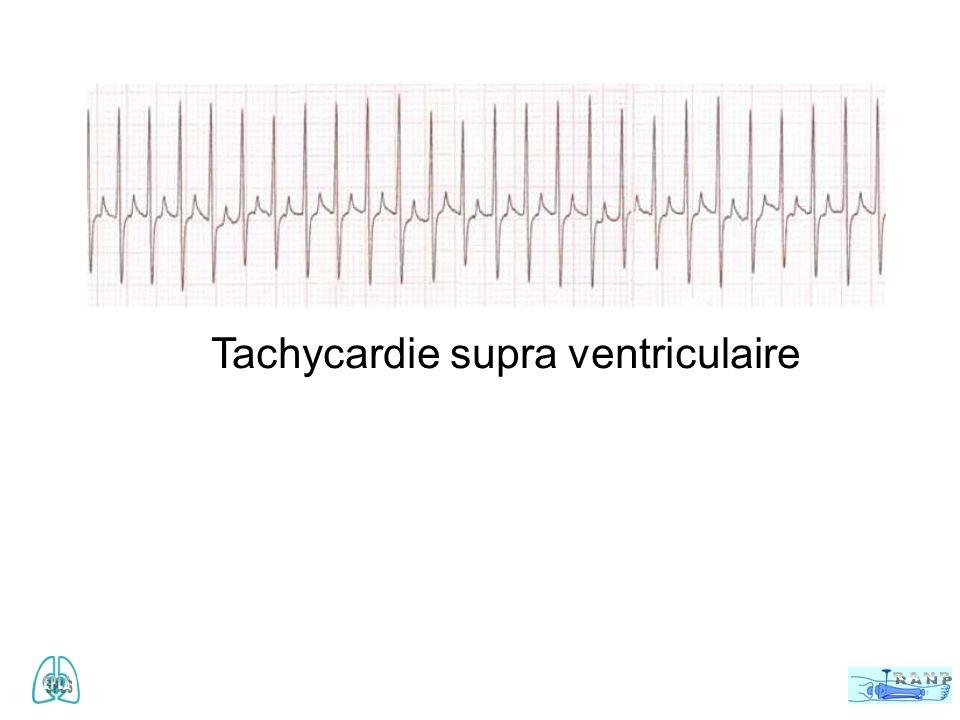 Tachycardie supra ventriculaire