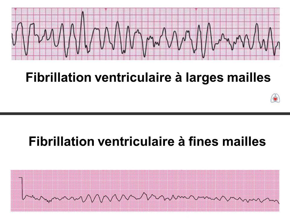 Fibrillation ventriculaire à larges mailles
