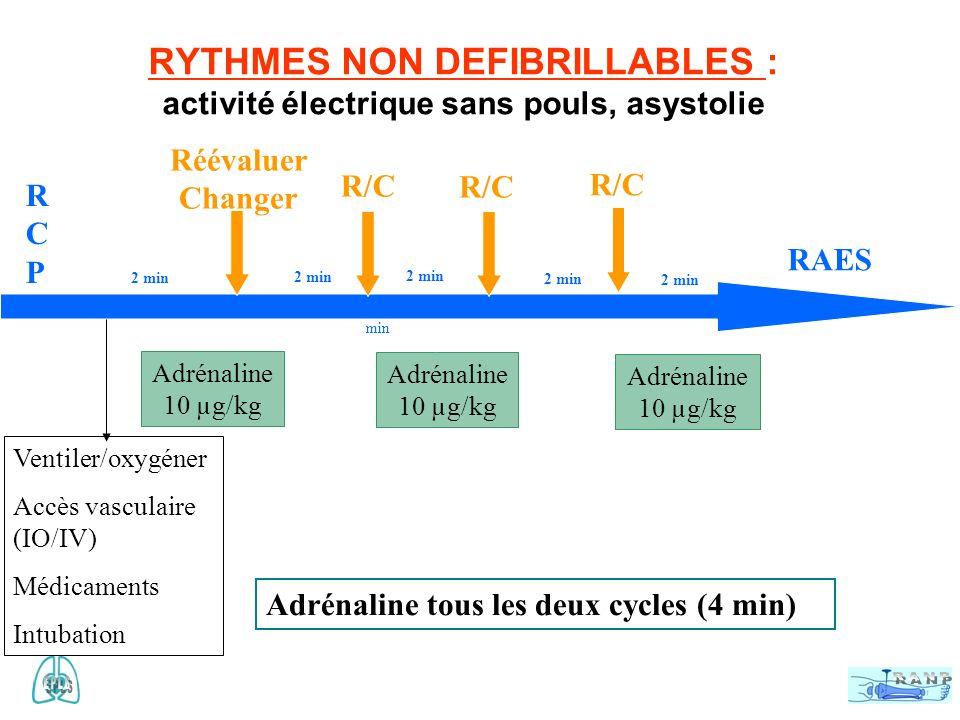 RYTHMES NON DEFIBRILLABLES : activité électrique sans pouls, asystolie