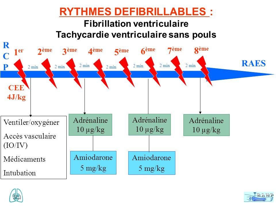 RYTHMES DEFIBRILLABLES :