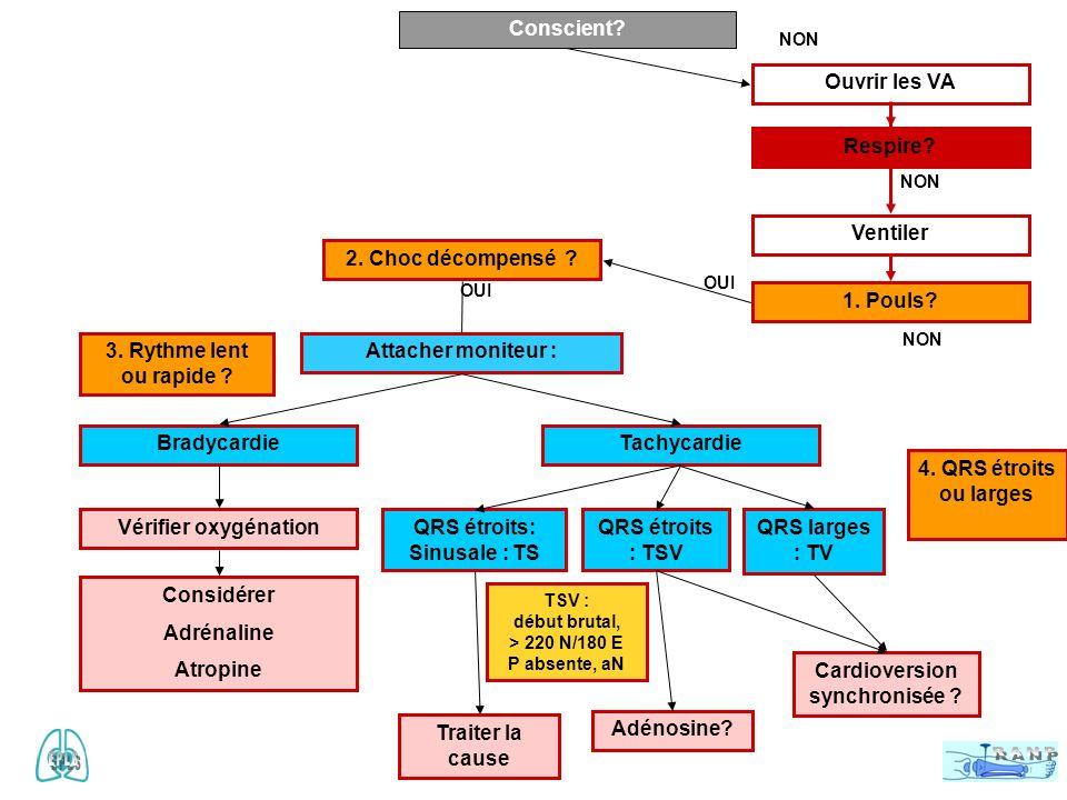 QRS étroits: Sinusale : TS Cardioversion synchronisée