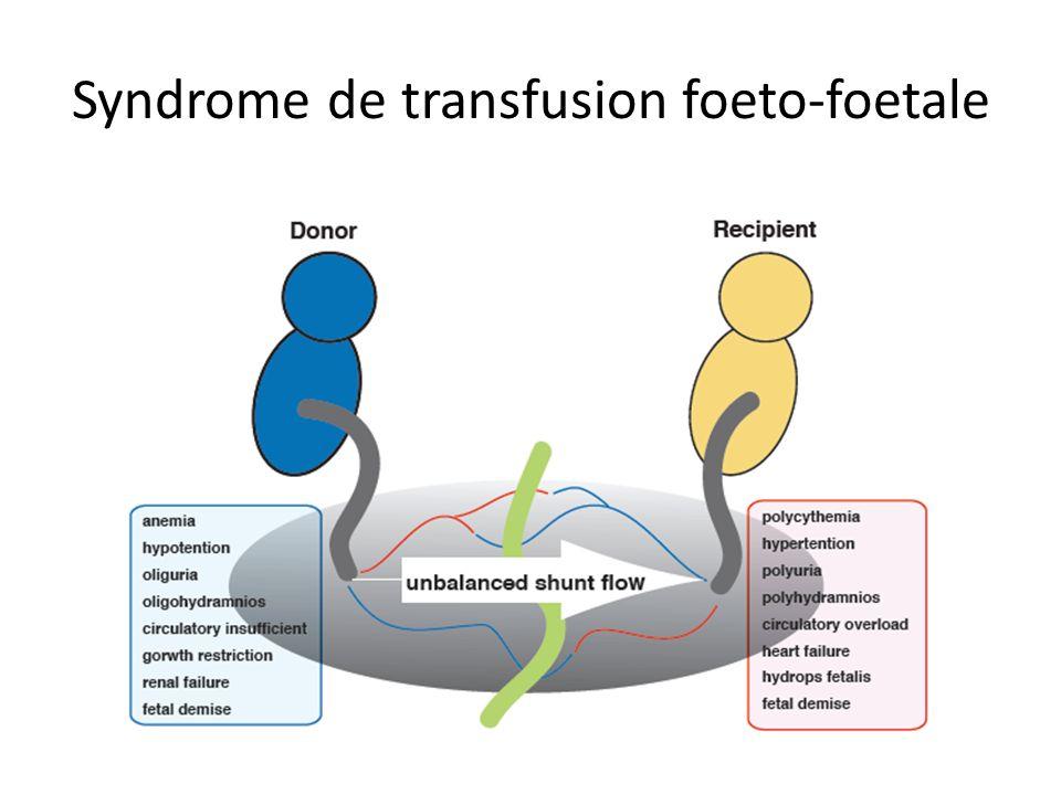Syndrome de transfusion foeto-foetale
