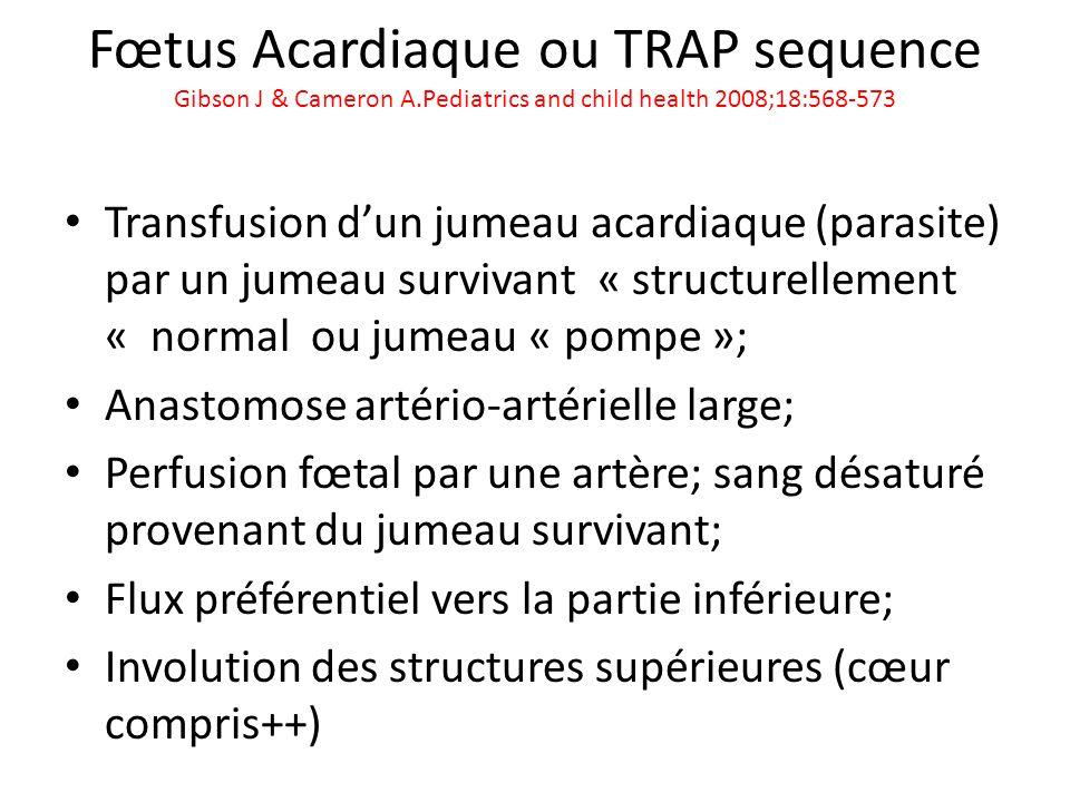 Fœtus Acardiaque ou TRAP sequence Gibson J & Cameron A