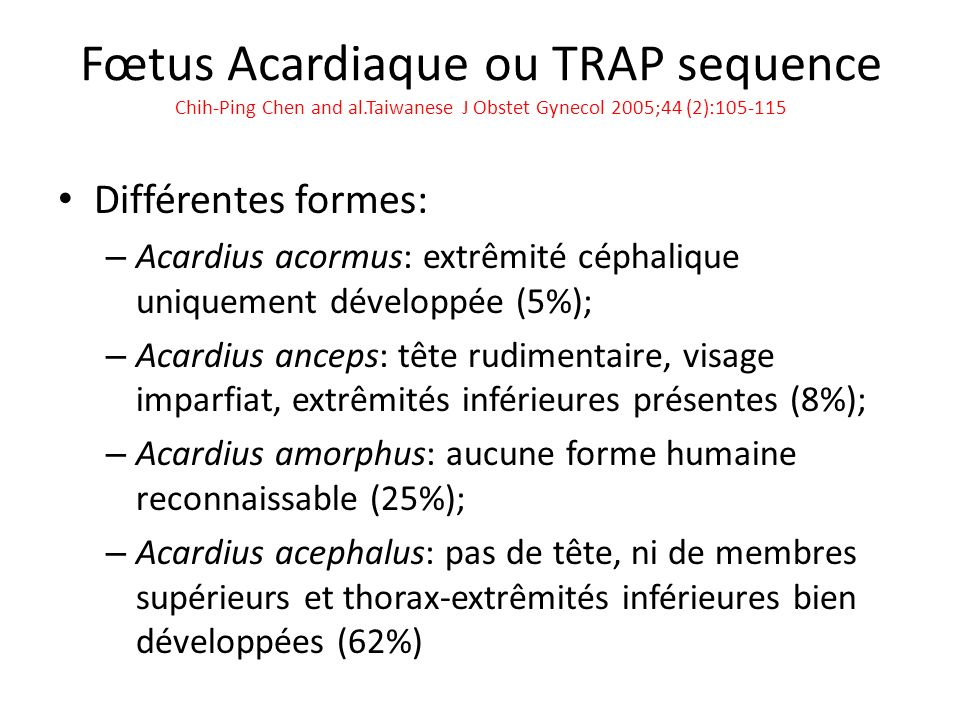Fœtus Acardiaque ou TRAP sequence Chih-Ping Chen and al