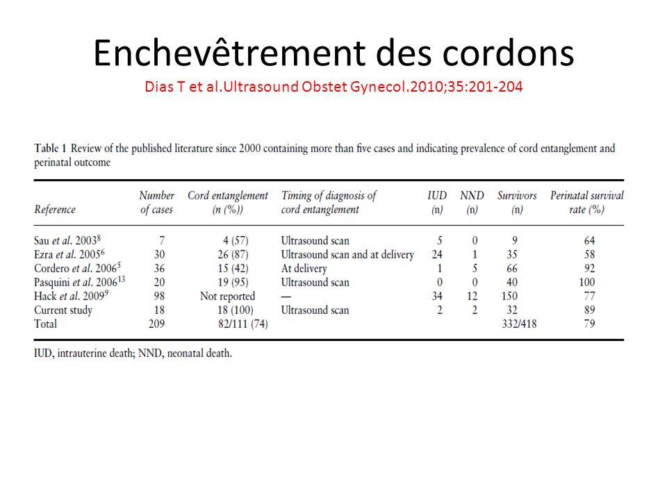Enchevêtrement des cordons Dias T et al. Ultrasound Obstet Gynecol