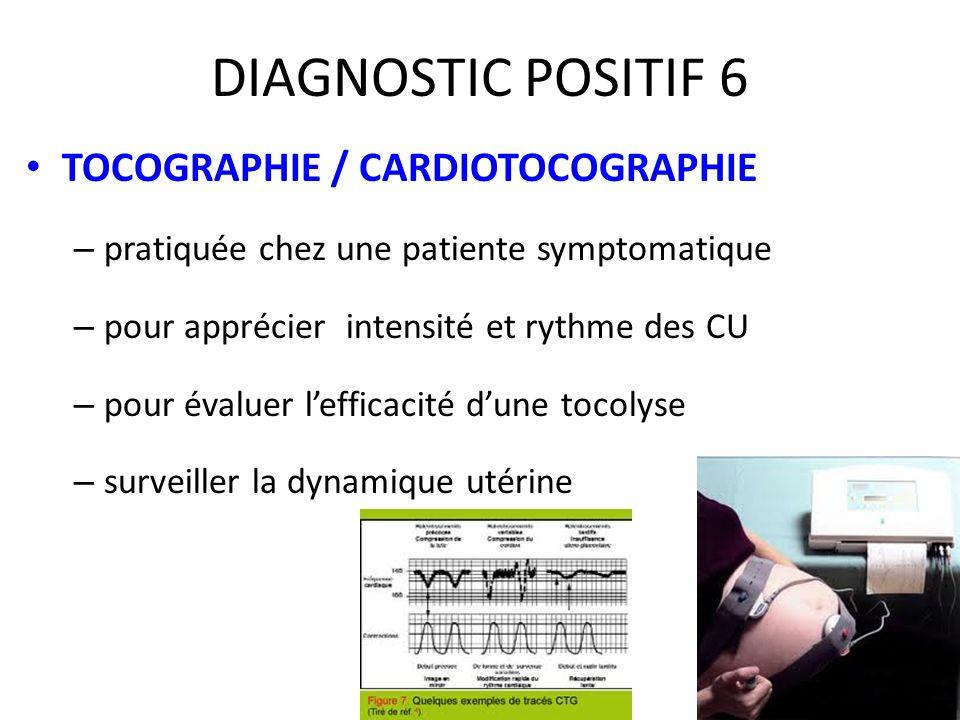 DIAGNOSTIC POSITIF 6 TOCOGRAPHIE / CARDIOTOCOGRAPHIE