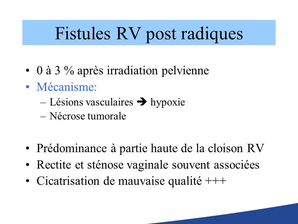 Fistules RV post radiques