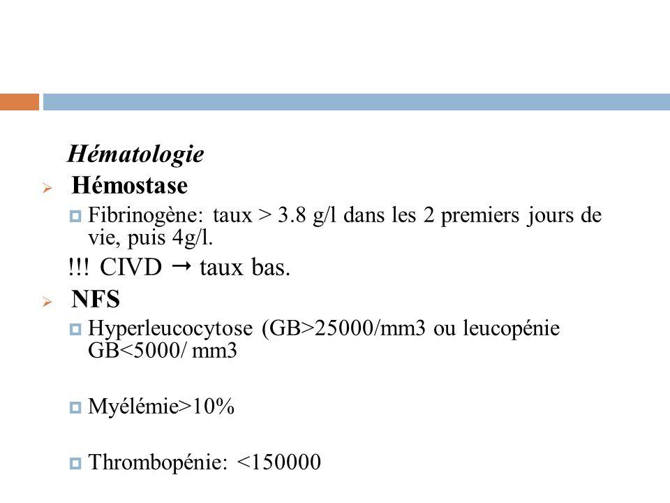 Hématologie Hémostase !!! CIVD  taux bas. NFS