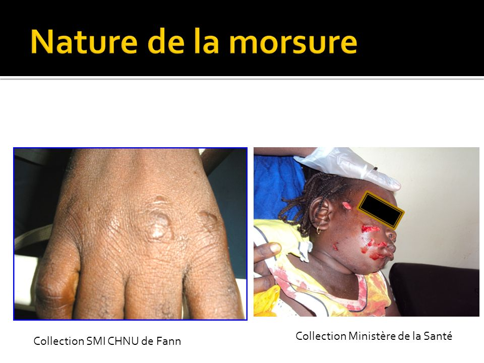 Nature de la morsure Collection Ministère de la Santé