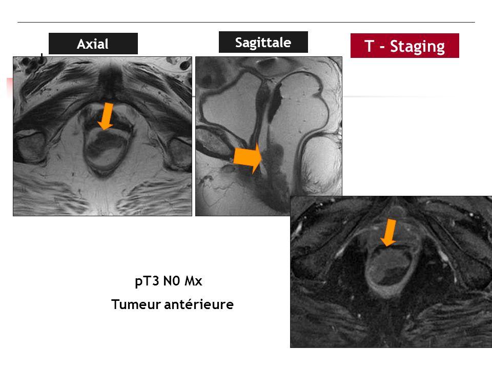 Axial Sagittale T - Staging pT3 N0 Mx Tumeur antérieure
