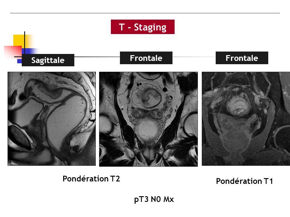 T - Staging Frontale Frontale Sagittale Pondération T2 Pondération T1