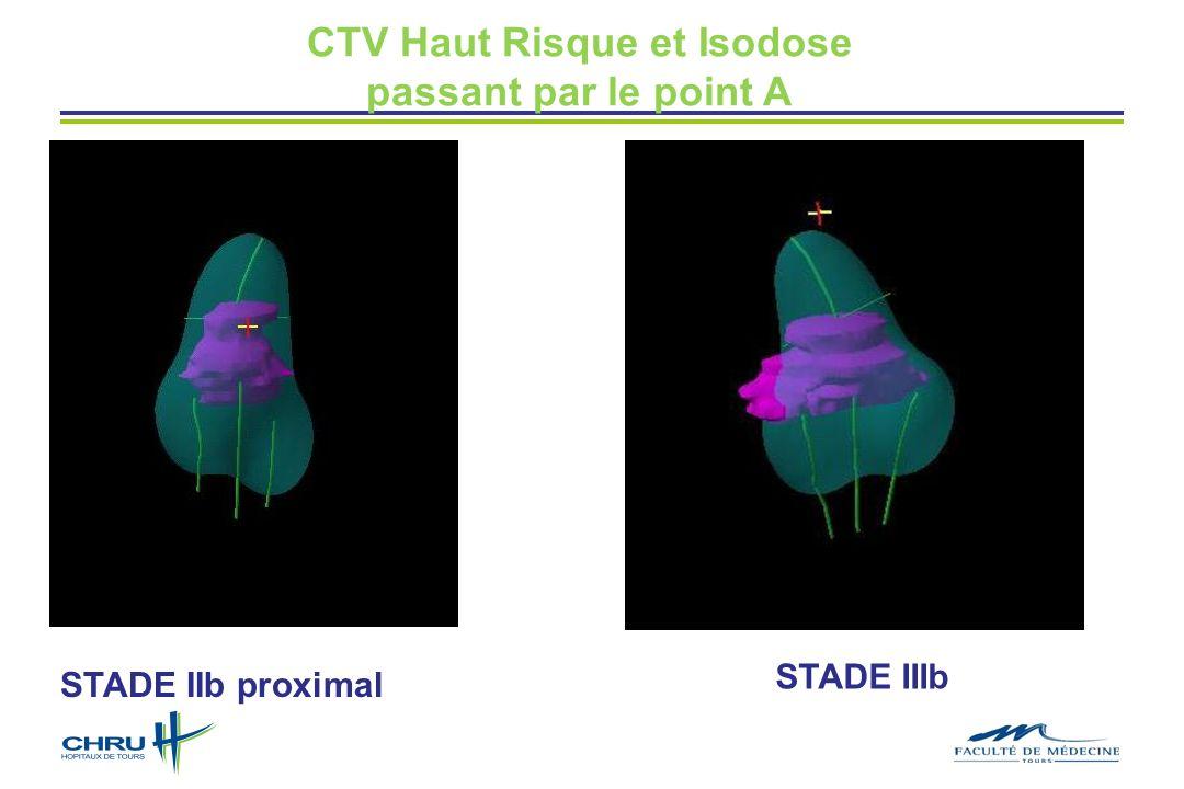 CTV Haut Risque et Isodose