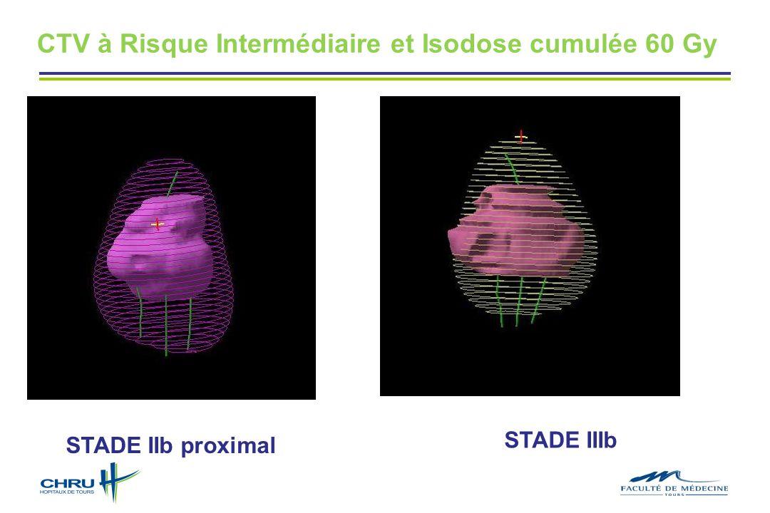CTV à Risque Intermédiaire et Isodose cumulée 60 Gy