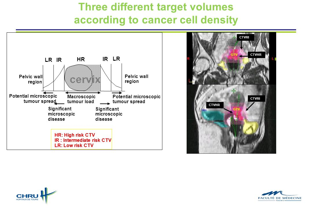 Three different target volumes according to cancer cell density