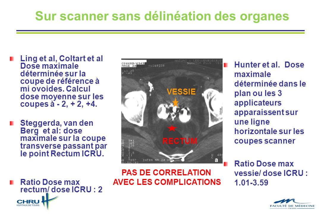 Sur scanner sans délinéation des organes AVEC LES COMPLICATIONS