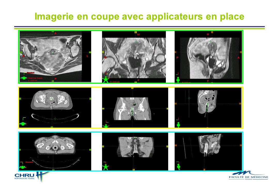 Imagerie en coupe avec applicateurs en place