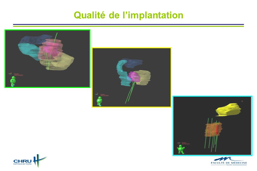 Qualité de l'implantation