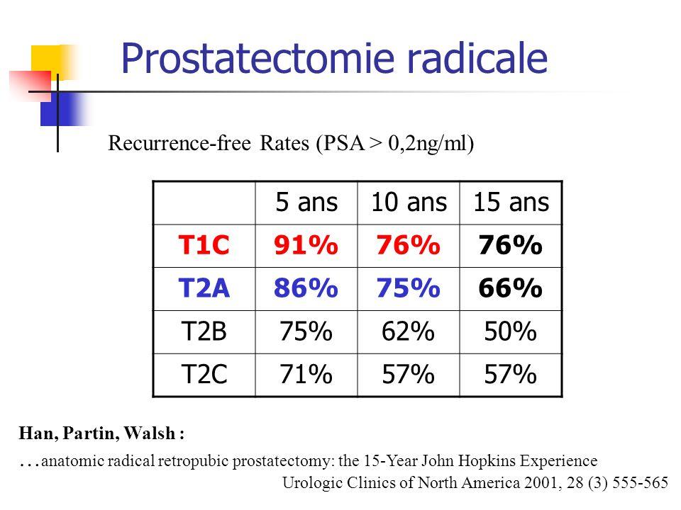 Prostatectomie radicale