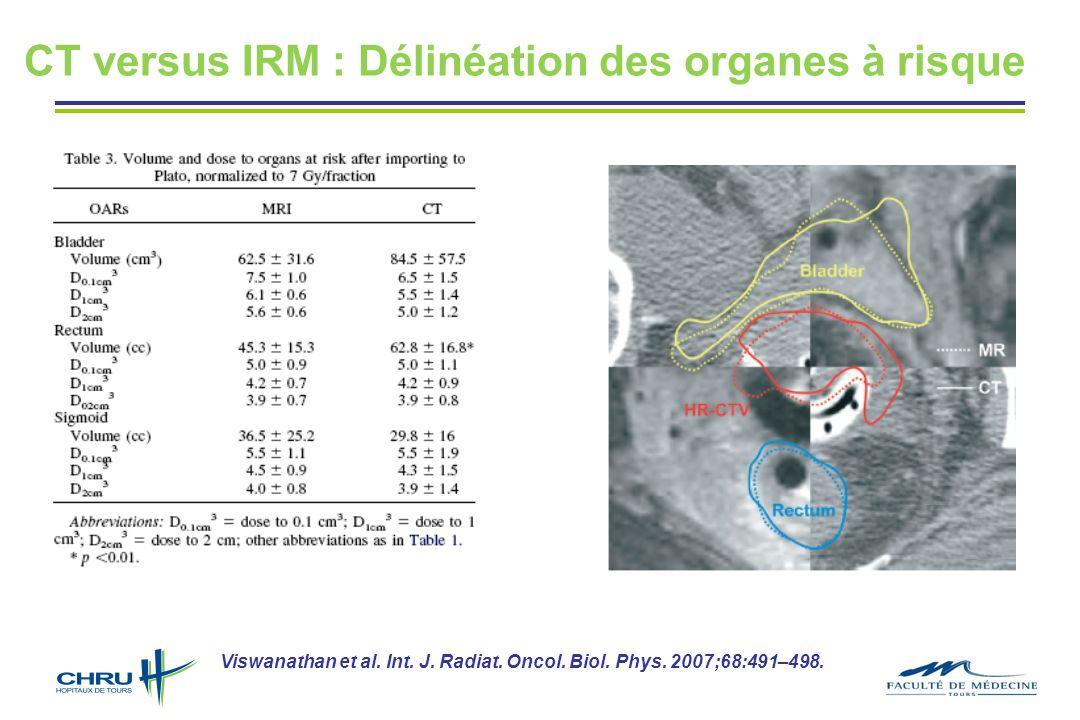 CT versus IRM : Délinéation des organes à risque