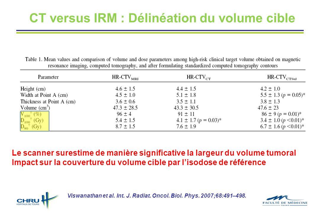CT versus IRM : Délinéation du volume cible