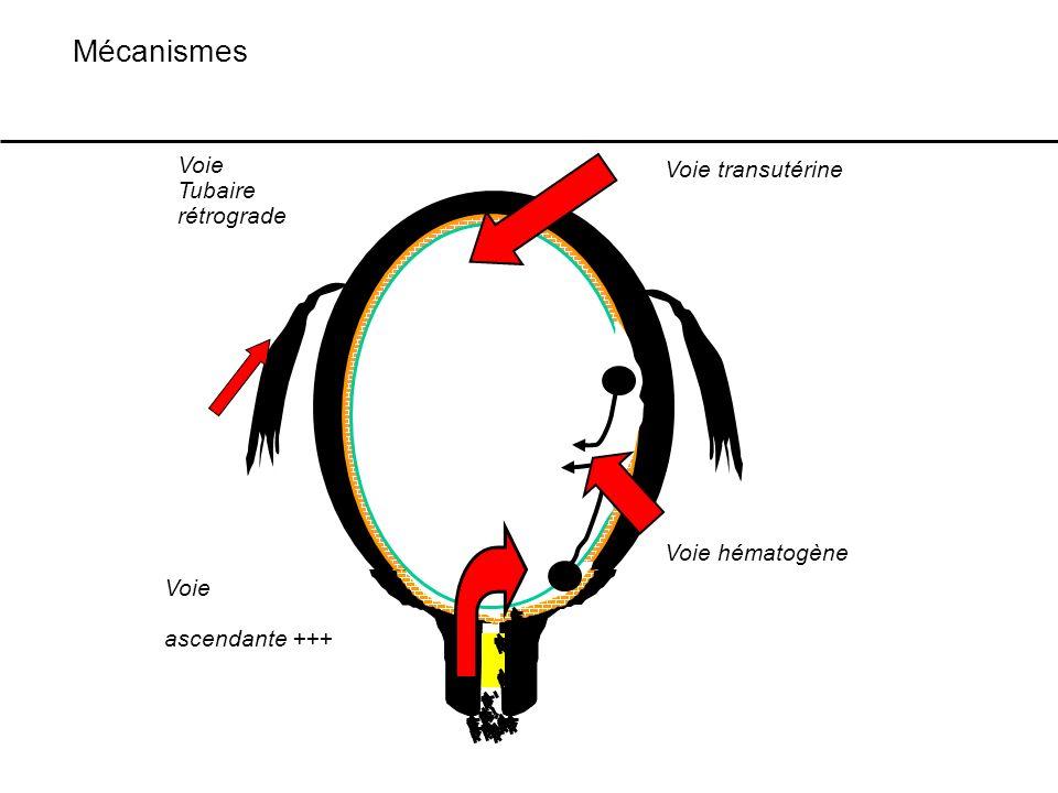Mécanismes Voie Voie transutérine Tubaire rétrograde Voie hématogène